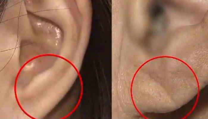 img 5a17037218ec3.png?resize=1200,630 - 「耳たぶ」にしわがある場合は必ず病院行かなければならない理由