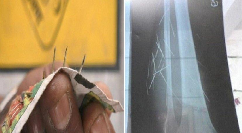 img 5a17d5afbc79b.png?resize=1200,630 - 足から絶えずに「針」が出て、酷痛みで歩けない女性