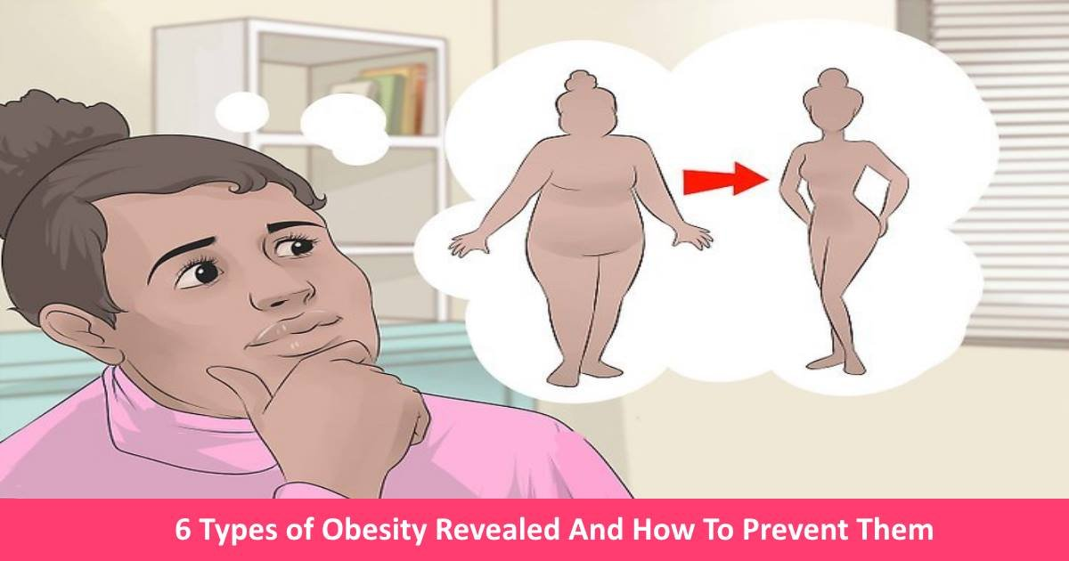 obesitytypes - The 6 Types of Obesity Revealed - And A Guide To How To Prevent Them!