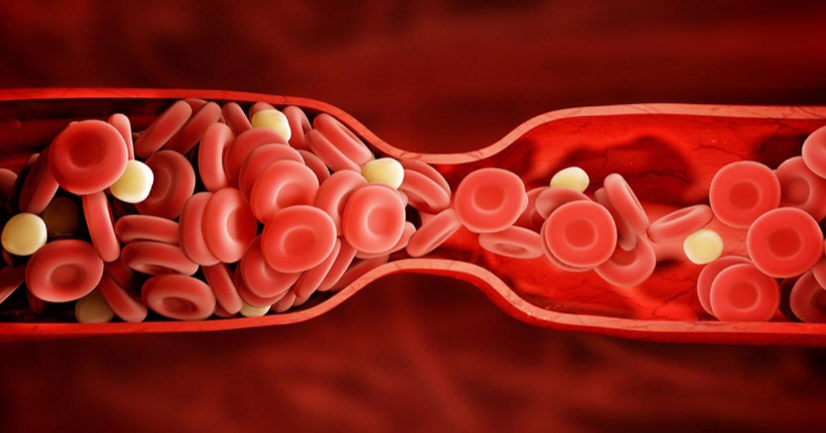 portada 1.jpg?resize=1200,630 - 8 señales de advertencia sobre los coágulos sanguíneos que todas las mujeres deberían saber