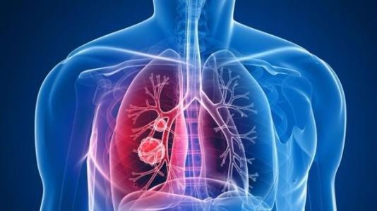 肺癌에 대한 이미지 검색결과