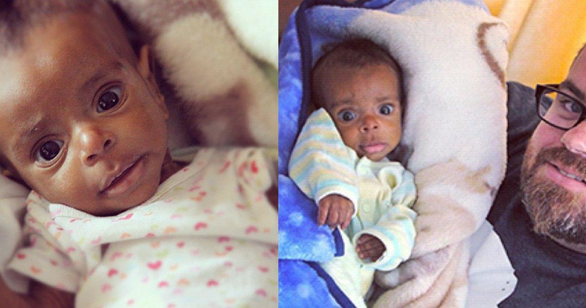 thumbnail4.png?resize=1200,630 - Una familia adopta a un huérfano desnutrido. ¡Pasaron cinco años y se ve completamente diferente!