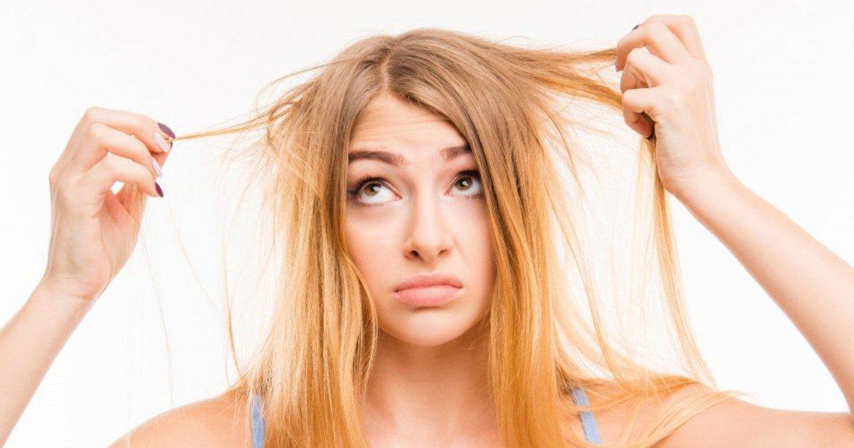 type of hair loss 954x635.jpg?resize=1200,630 - 머리카락으로 알아보는 건강 상태 6가지