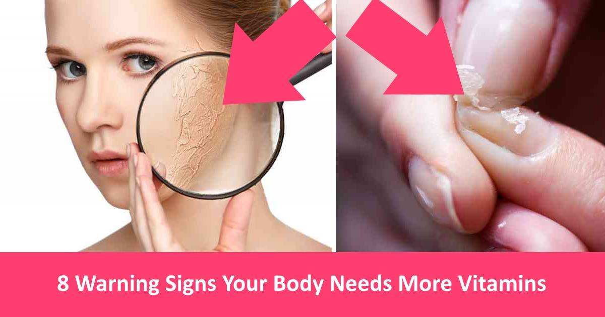 unhealthybody 1 - 8 Warning Signs Your Body Needs More Vitamins