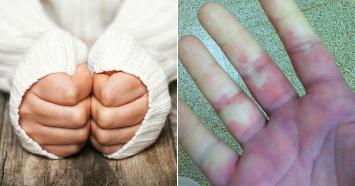 wqr - 겨울철 손발이 하얗게 변하고 차가워지는 당신, '레이노 증후군'일 수 있다