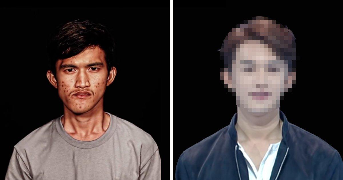1 124.jpg?resize=1200,630 - 連媽媽都認不出來了!泰國男子歷經整形手術後人生大逆轉!