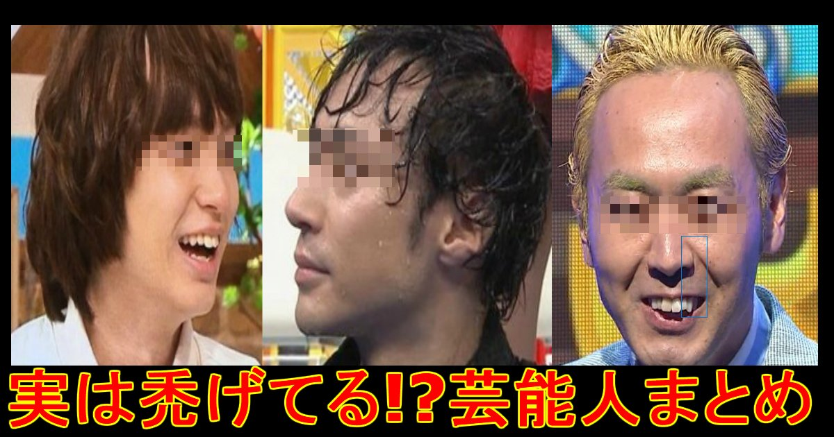 1 516.jpg?resize=648,365 - キテる!?【ハゲ】疑惑の有名人たち!