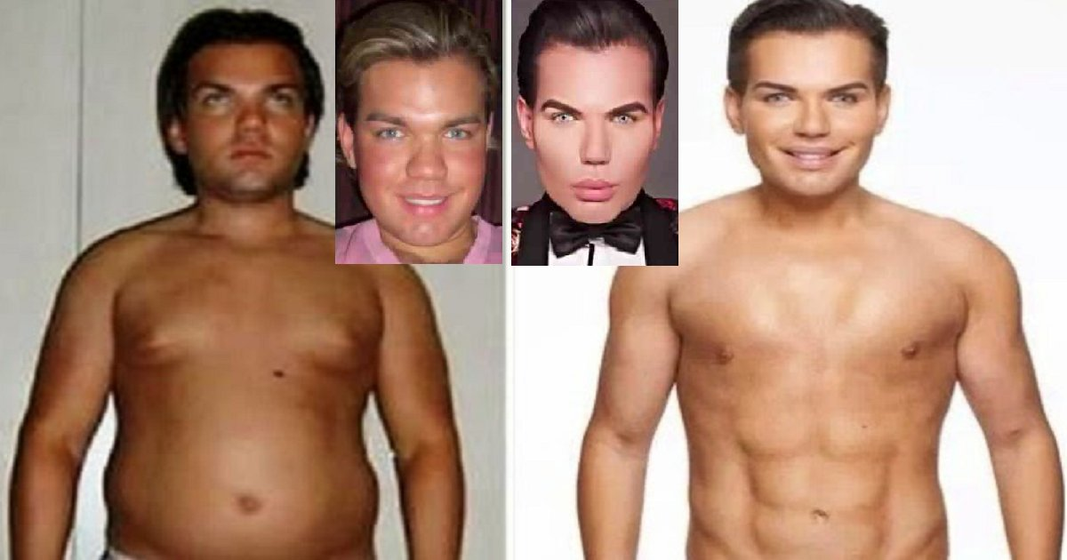 """5fg - """"The Human Ken Doll"""" Shares How He Looked Like Before 51 Plastic Surgeries and 103 Cosmetic Procedures"""