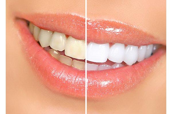8 8.png?resize=648,365 - もとは歯並び最悪?差し歯をしている芸能人