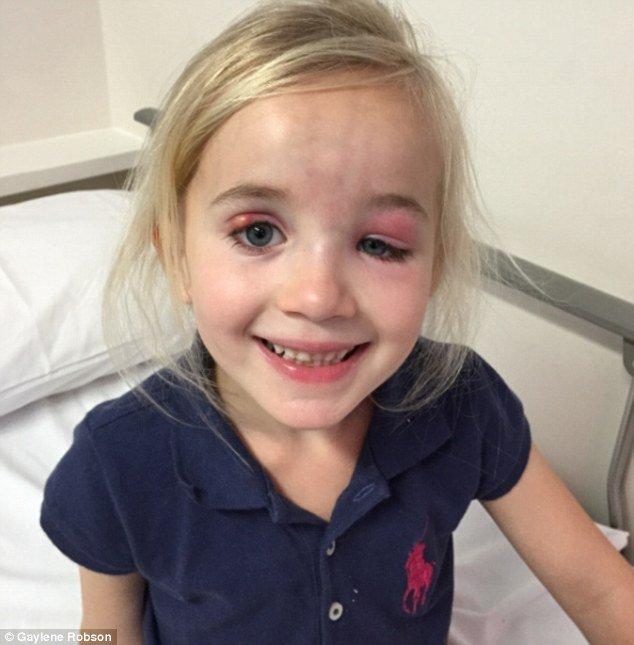 Stella Robson, agora com 6 anos, foi diagnosticada com uma forma rara de câncer depois que seu olho começou a inchar