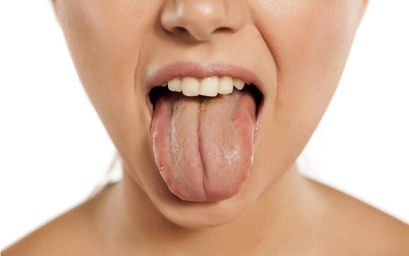 Image result for 舌 黄色