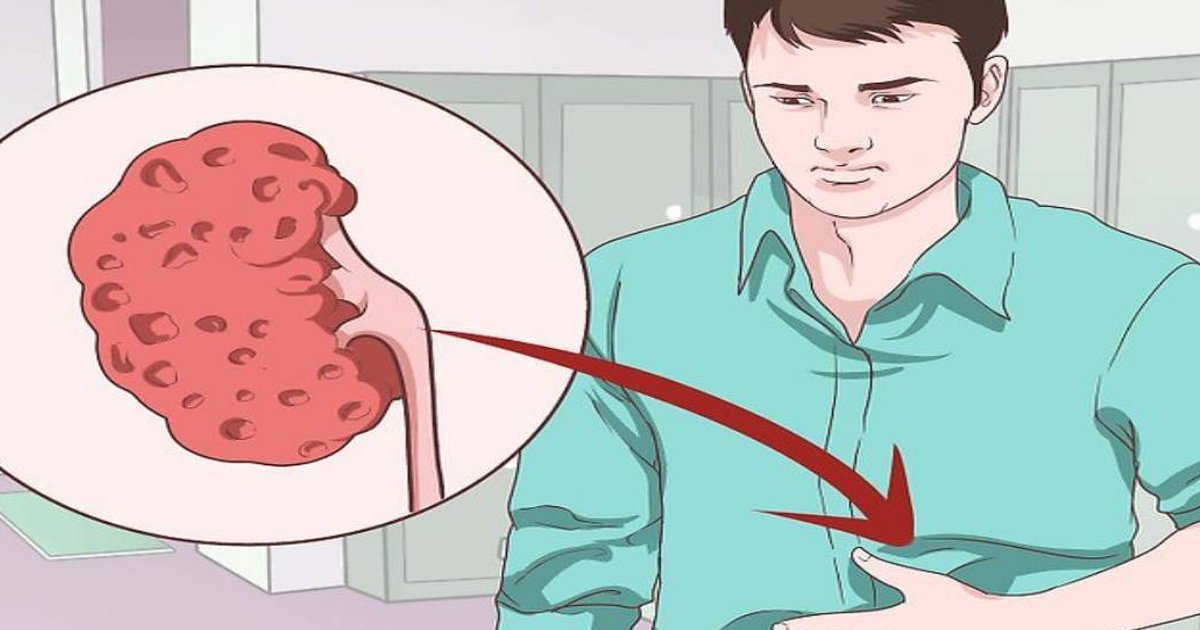 civer5.png?resize=648,365 - 8 señales que indican si tus riñones no funcionan con normalidad