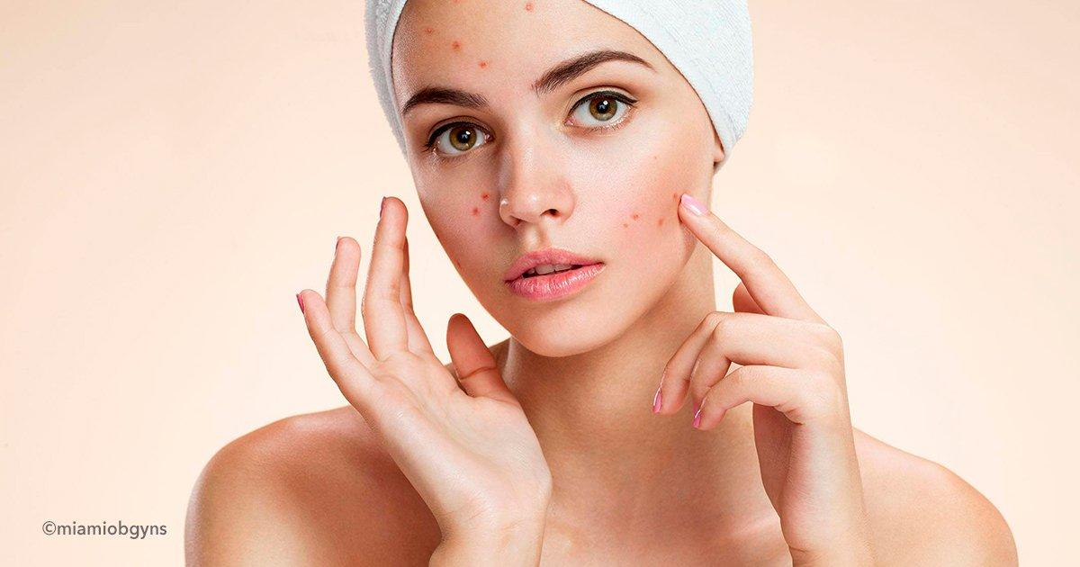 cover99.jpg?resize=1200,630 - 9 Señales de advertencia de desequilibrio hormonal que pueden producir manchas faciales