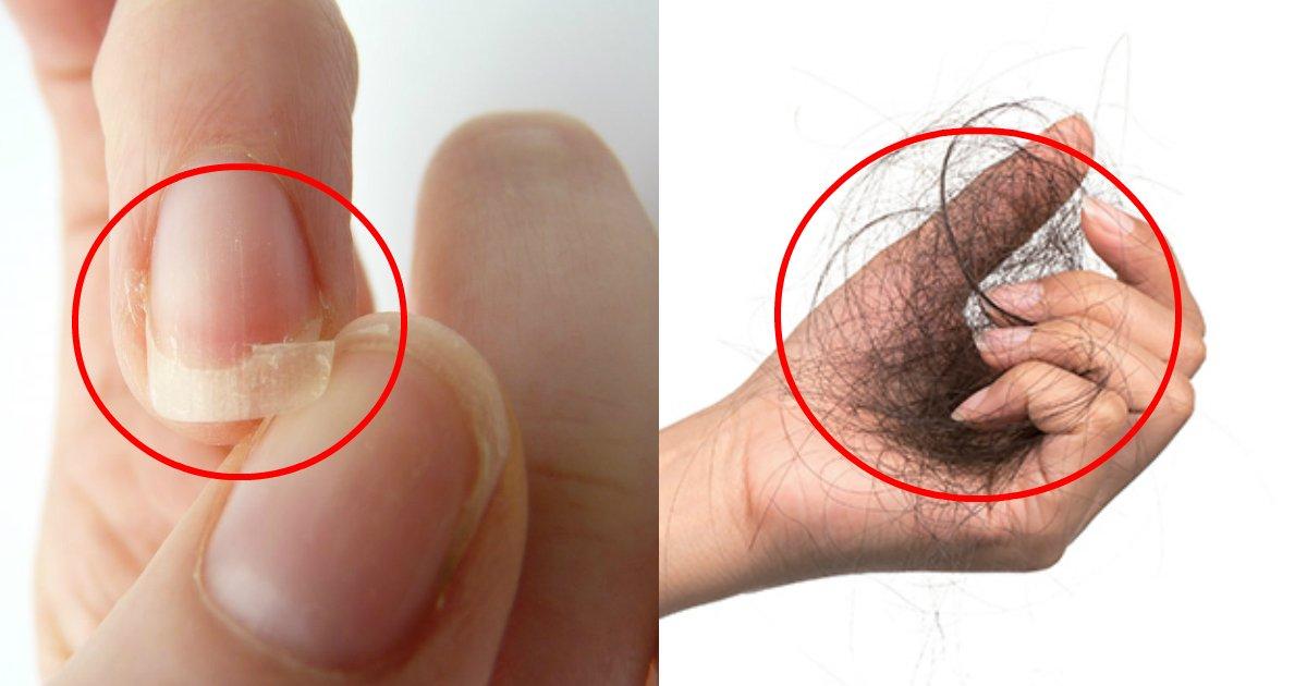 cuidado - Cuidar das glândulas supra renais evitam que cabelos caiam e unhas quebrem