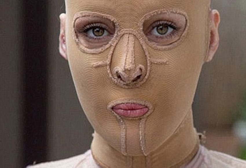 dana vulin burned alive 6 1.jpg?resize=300,169 - Woman who wore mask for three years to hide her burned face finally took it off. What the world saw was unbelievable.