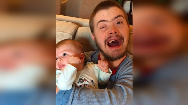 downs-syndrom-brother-hugs-baby-1