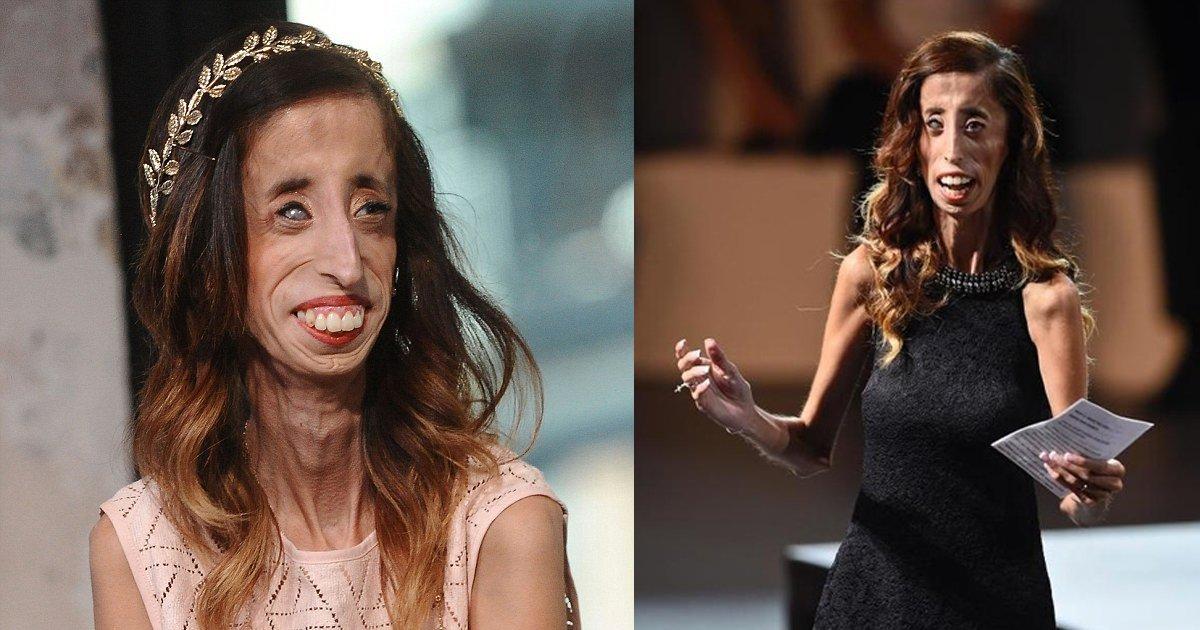 e69caae591bde5908d 1 2.png?resize=1200,630 - 被封「全世界最醜女人」的她用最漂亮的人生反擊霸凌者!