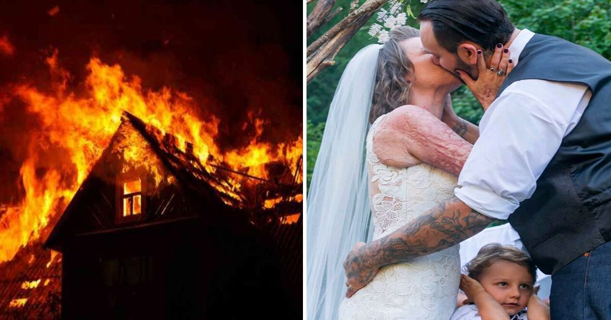 ec8db8eb84a4ec9dbc2 3 - Woman's Skin Got Fire Burn When She Rescues Girl From House On Fire, Then Her Boyfriend Married Her