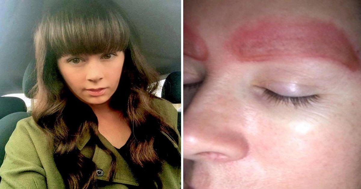 ec8db8eb84a4ec9dbc5 5.jpg?resize=1200,630 - Que pesadelo! A pele dessa mulher caiu do rosto após um procedimento estético suspeito