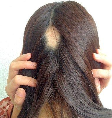 脱毛症에 대한 이미지 검색결과