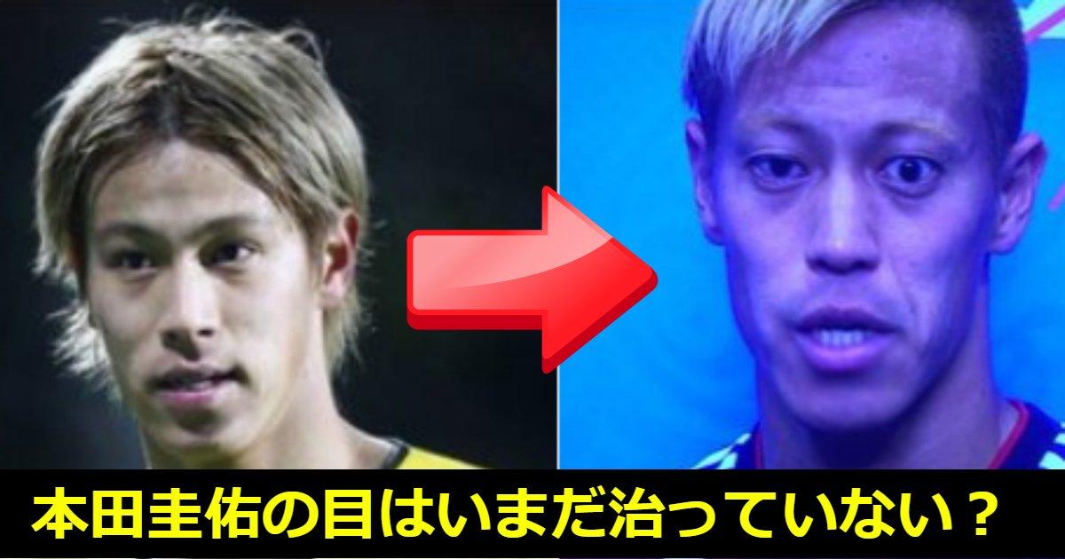 honda.png?resize=1200,630 - 【現在写真あり】本田圭佑の顔が変わったのは病気?いつから?現在の近況についてもまとめてみた