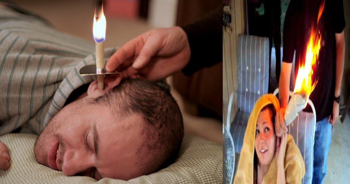 image - Cone em chamas para remover a cera do ouvido? Veja como funciona!