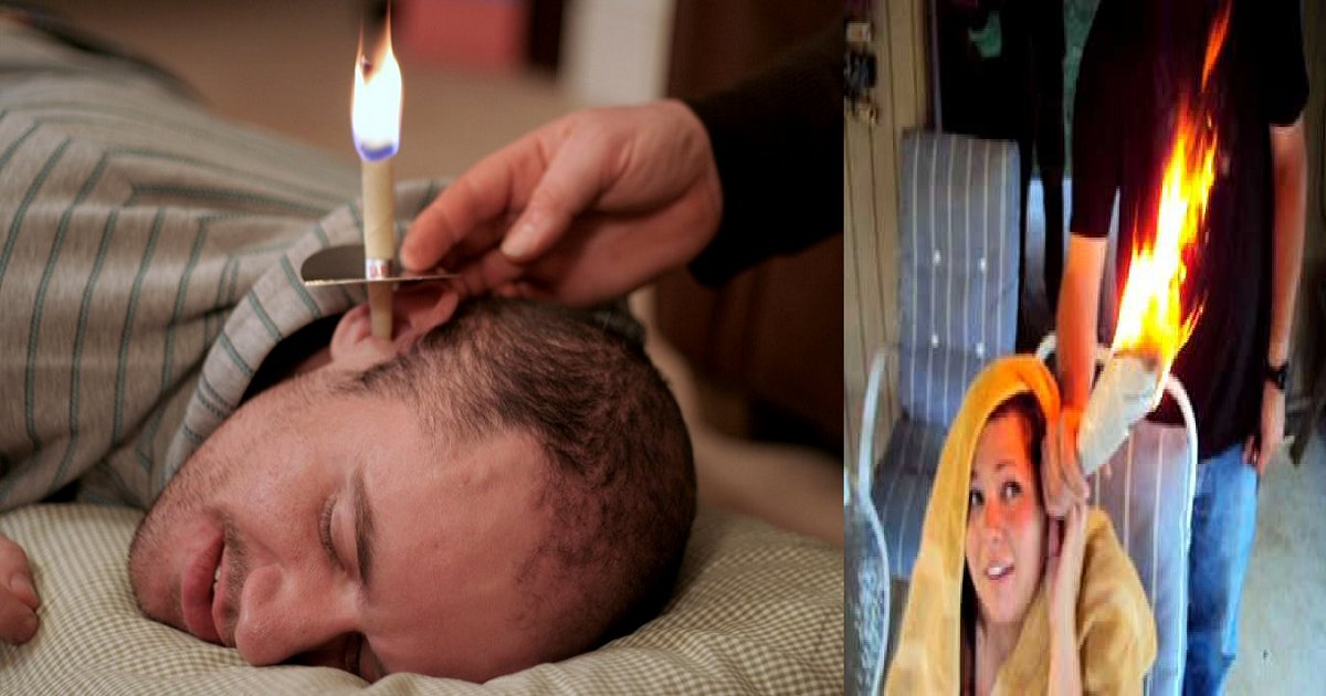 image.png?resize=636,358 - Burning Cones To Remove Ear Wax? Here's How It Works