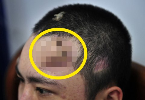 img 5a37be21c321a - 交通事故で鼻を失った男性、結局は最後の方法を選んだ