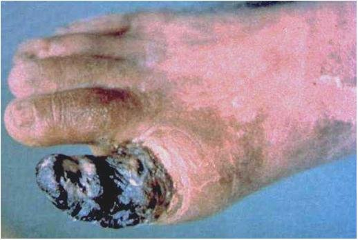 img 5a42632576f02.png?resize=1200,630 - 意外と知らない?ニコチンの体に与える害をおさらい
