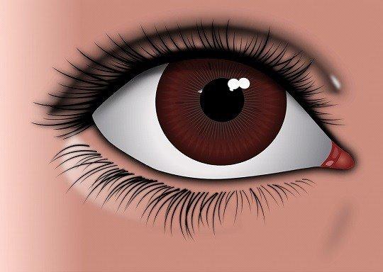 貧血,まぶた에 대한 이미지 검색결과