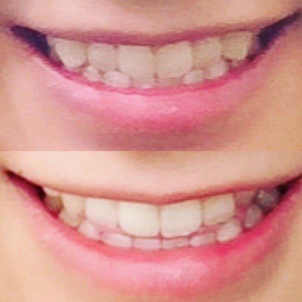 Image result for 付け八重歯