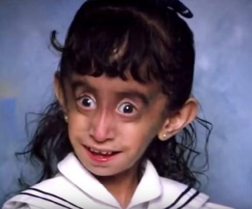 lizzie-velasquez-marfan-syndrome-2