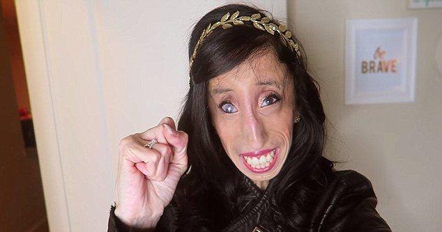lizzie-velasquez-marfan-syndrome-3