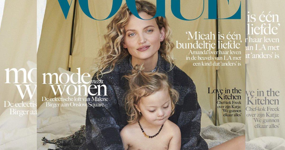 mainphoto vogue.jpeg?resize=648,365 - Ce modèle et son fils trisomique font la couverture de Vogue Living
