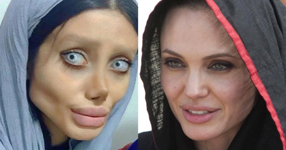 maxresdefault 18.jpg?resize=636,358 - A Teenager Said She Had Plastic Surgeries 50 Times To Look Like Angelina Jolie, But Wasn't True After All