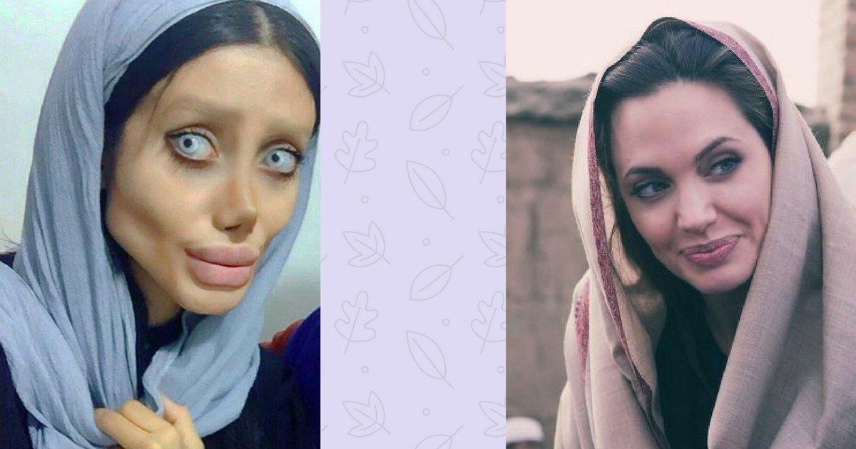 sans titre 15 - 50 opérations pour ressembler à Angelina Jolie