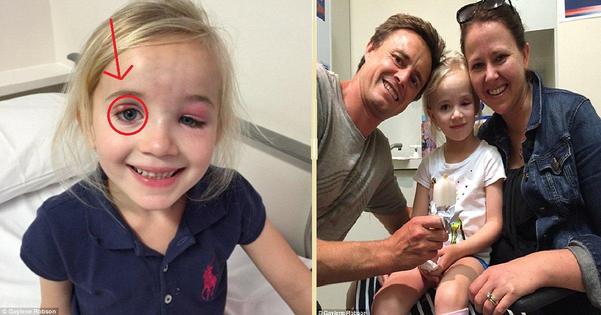 thumb nail stella robson.png?resize=1200,630 - Médicos insistiram que era apenas uma infecção ocular, mas na verdade era algo muito pior!