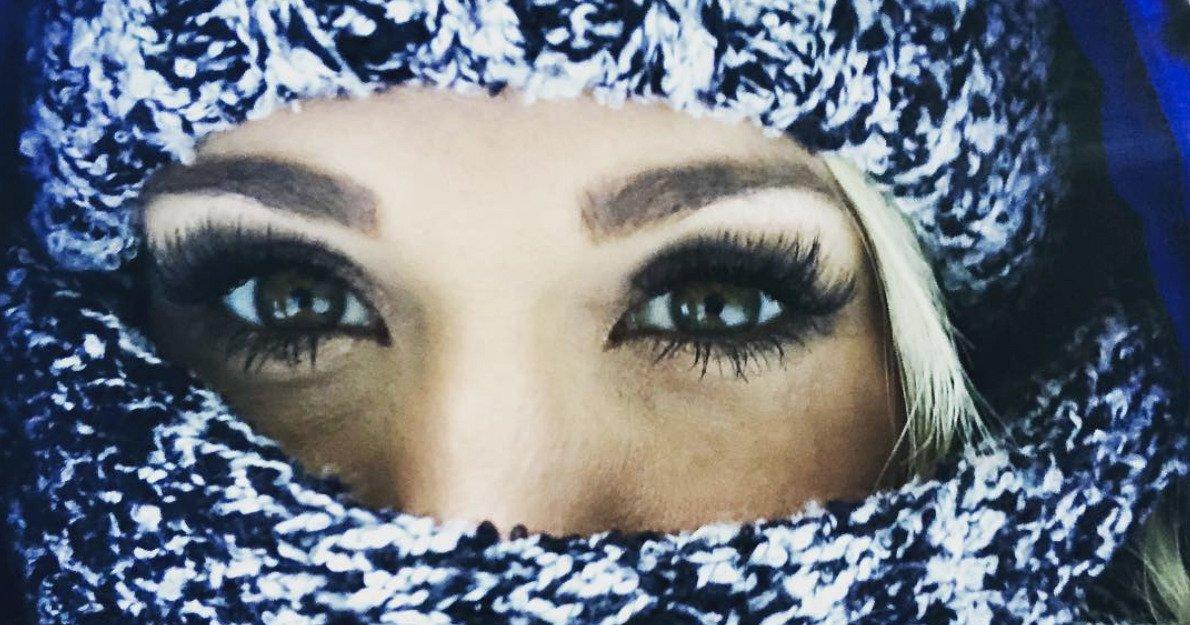 1 carrie underwood w1200 h630 1.jpg?resize=1200,630 - Carrie Underwood, blessée, a subit 40 à 50 points de sutures sur son visage