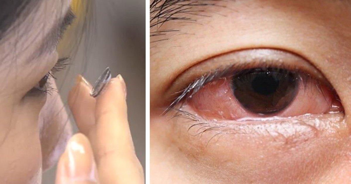 22222 2 - 瞳孔放大片才戴兩天就送醫!南韓正妹國中生差點失明