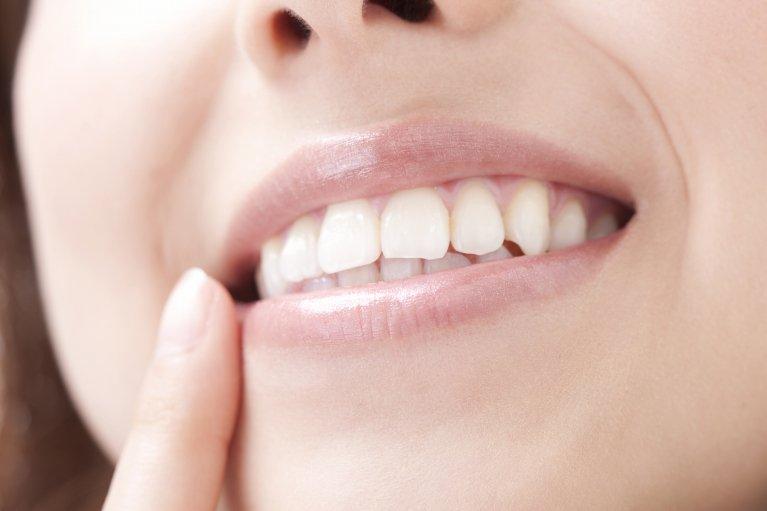 歯が白い에 대한 이미지 검색결과
