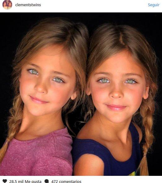 """5a592c6fe1175  4 - """"Las gemelas más bellas del mundo"""" han enloquecido a las redes sociales"""