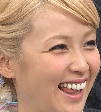 E-girlsAmi 歯에 대한 이미지 검색결과