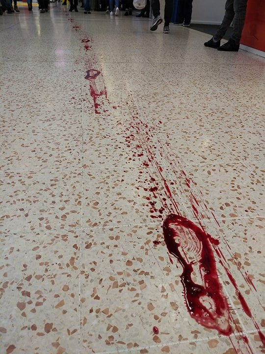 Doctor Follows Bloody Footprints Through Shopping Centre And Makes Horrific Discovery 27152851 10159843176720721 598439875 n