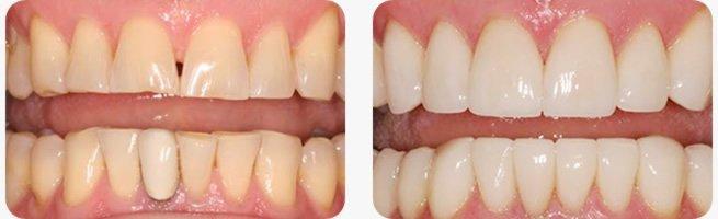 芸能人の歯 セラミック에 대한 이미지 검색결과
