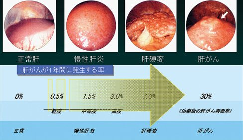 「肝腫瘍」の画像検索結果