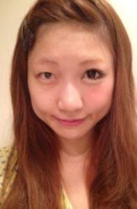 Image result for 桃 二重整形