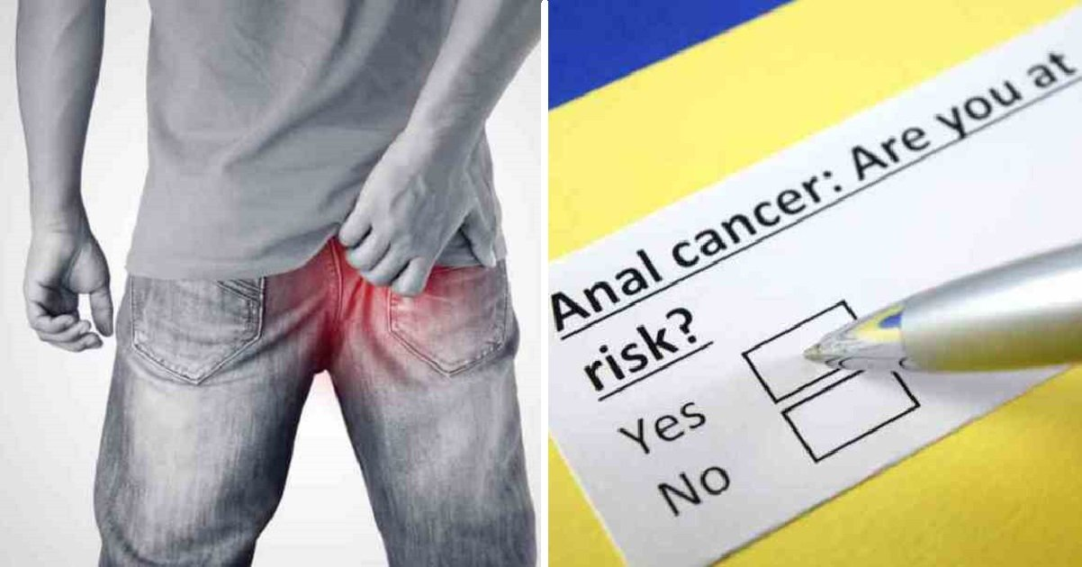 analcancer2 1.jpg?resize=300,169 - Six Early Anal Cancer Warning Signs That People Are Embarrassed To Talk About