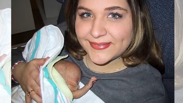 baby 1 - Miracle Of Baby Zoe Who Was Even Shorter Than A Barbie Doll At Birth
