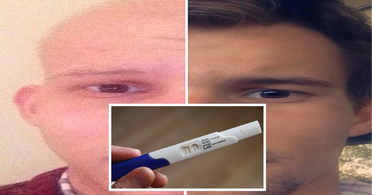 byron1 1.jpg?resize=412,232 - 18-Year-Old Boy Was Told To Use Pregnancy Test And The Results Saved His Life