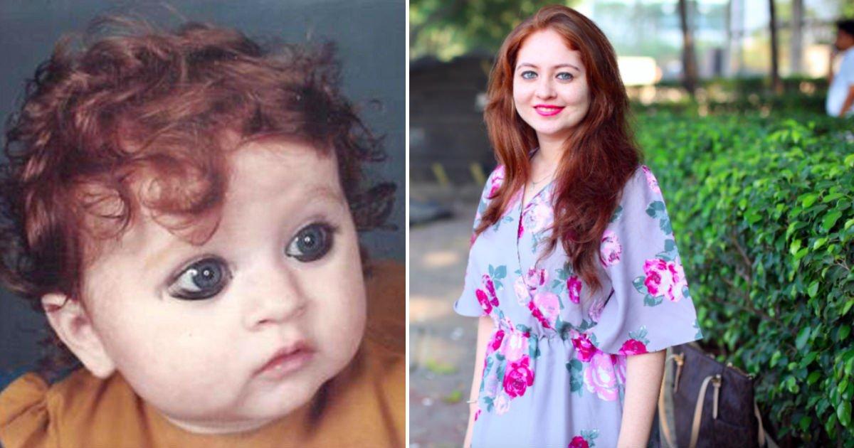 cdes.jpg?resize=1200,630 - Essa menina é tão diferente de sua família que as pessoas ao seu redor até acham que ela tem uma doença!
